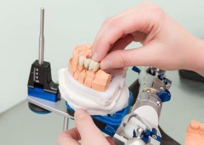 Zahnimplantat im Artikulator